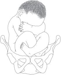 徴候 スカーフ 小児神経学的検査チャート作成の手引き 一般社団法人 日本小児神経学会